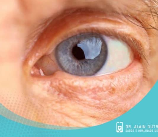 Glaucoma e degeneração macular - Remédios naturais