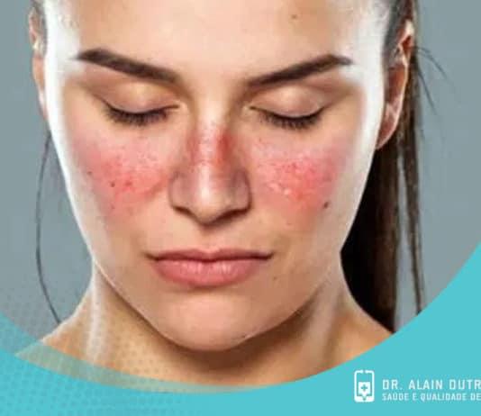 Entenda sobre a origem do Lúpus: sintomas e tratamentos naturais
