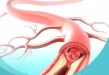Vasculites, Arterites e Doença de Takayasu – Como tratar naturalmente.