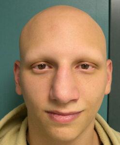alopecia areata total