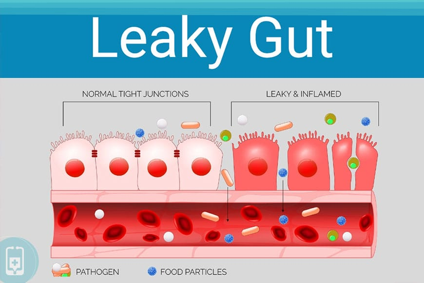 Disbiose - Leaky Gut