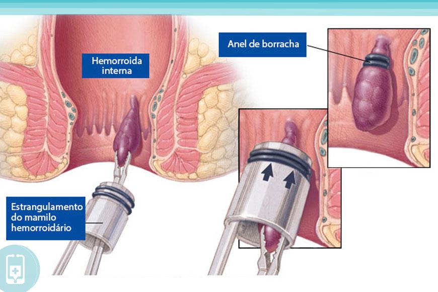 Hemorroidas inflamadas - Ligadura Elástica