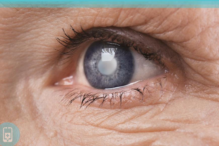 Deficiência de ômega-3 - Degeneração macular
