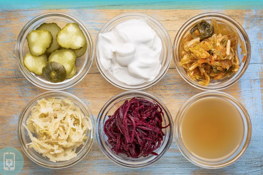 Alimentos Fermentados e saúde intestinal