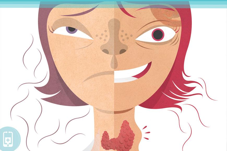 Sintomas - Depressão e tireoide