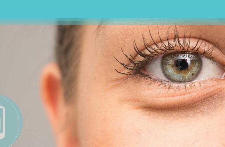 Bolsas nos olhos - Como se livrar delas de maneira fácil e natural
