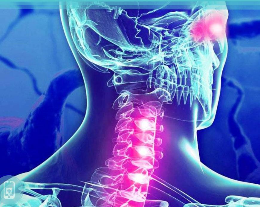Biotina e Esclerose Múltipla