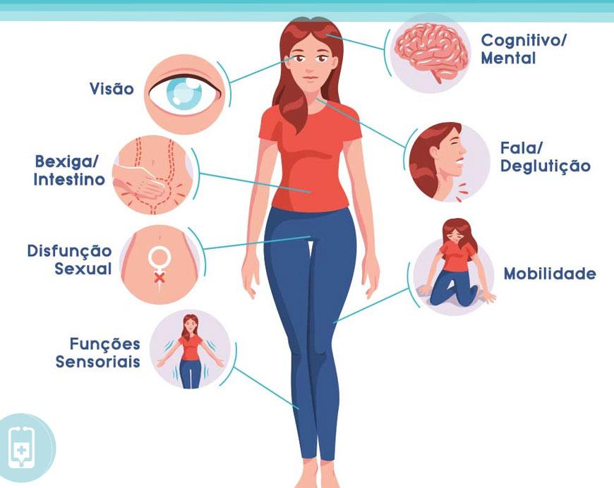 Esclerose múltipla - Sintomas