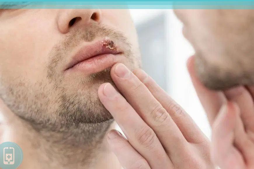 sintomas mais comuns da herpes